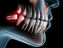 Удаление зубов «мудрости»